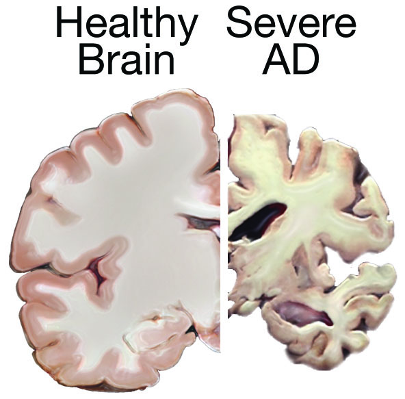 This graphic, produced by the National Institute on Aging, demonstrates the effects of Alzheimer's disease on the brain, and is one piece of information the coalition is sharing with community members.